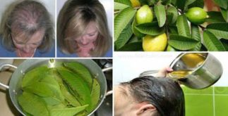 Easy Natural way to prevent Hair fall 4 Behind History