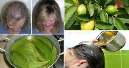 Easy Natural way to prevent Hair fall 125 Behind History