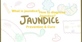 What is Jaundice? | How to Diagnose and Prevent Jaundice? 4 Behind History