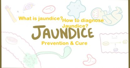 What is Jaundice? | How to Diagnose and Prevent Jaundice? 75 Behind History