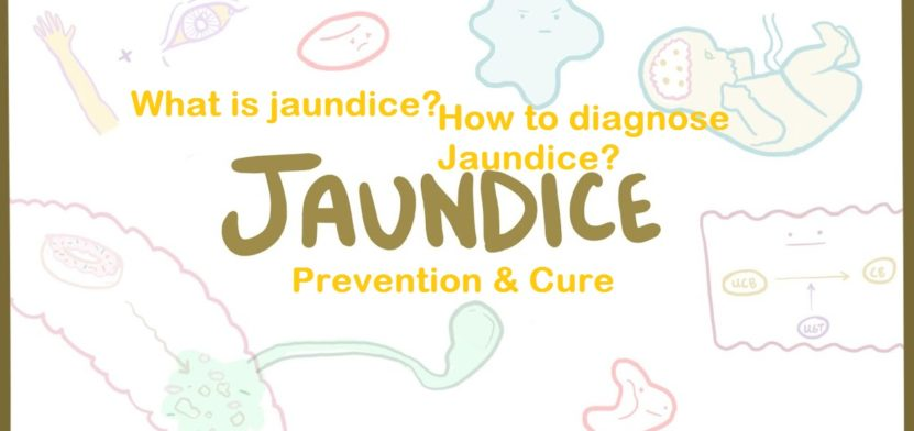 What is Jaundice? | How to Diagnose and Prevent Jaundice? 1 Behind History