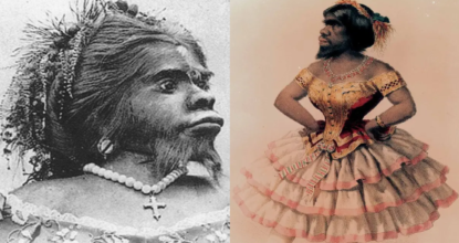 Julia Pastrana - Mexican Ape Women Buried 150 Years after Death 50 Behind History